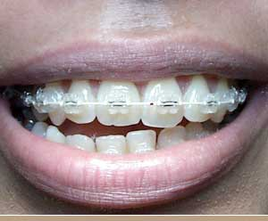 [teeth_braces.jpg]